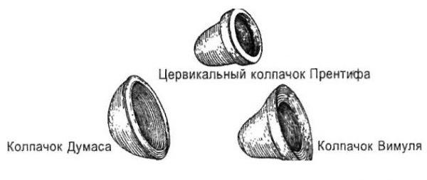 Колпачки Думаса, Прентифа и Вимуля