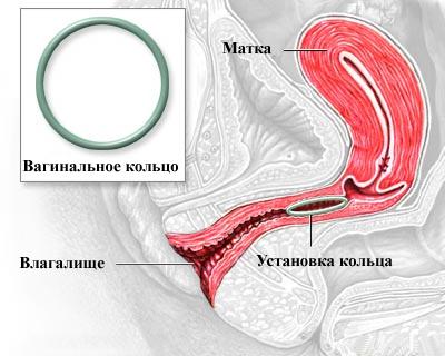 vaginalnie-koltsa-instruktsiya-po-primeneniyu