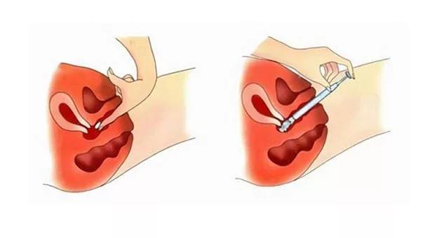 Способ применения противозачаточных вагинальных таблеток